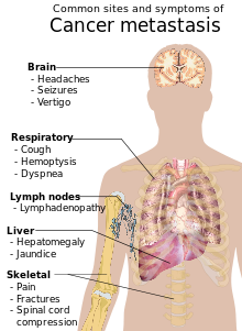 7de0d-220px-symptoms_of_cancer_metastasis-svg