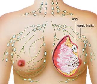 Tumor-Ganas-Payudara